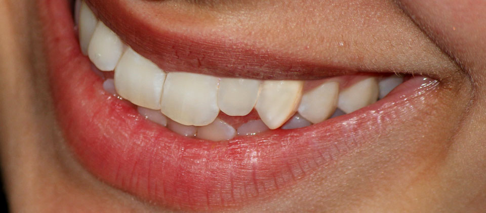 close up of smile with white teeth